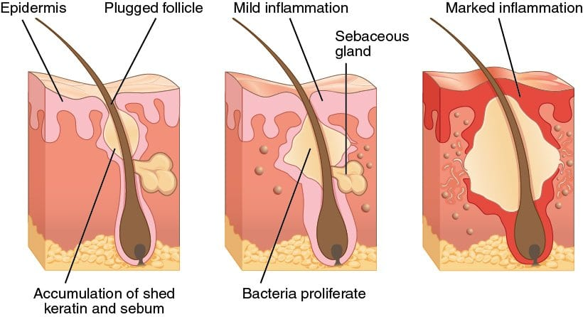 description of acne formation